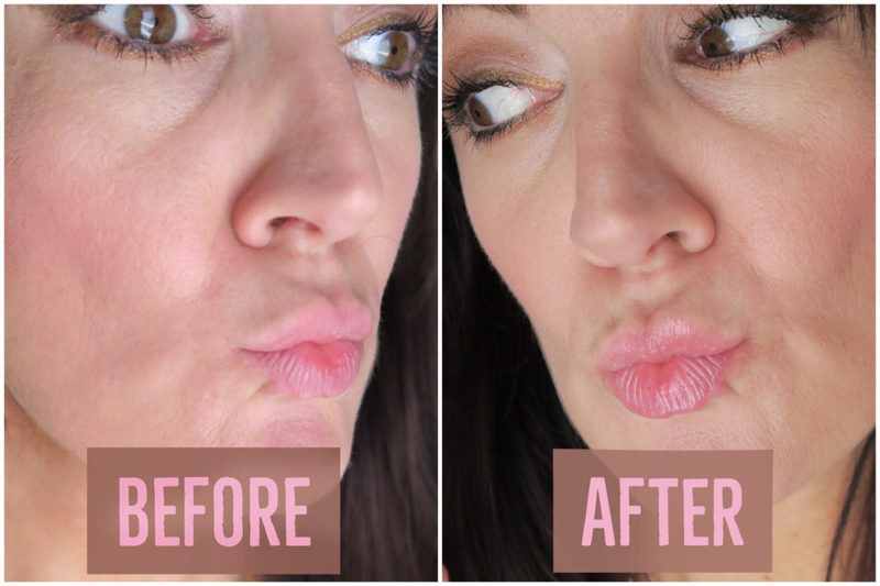 fuller lips without lip injections