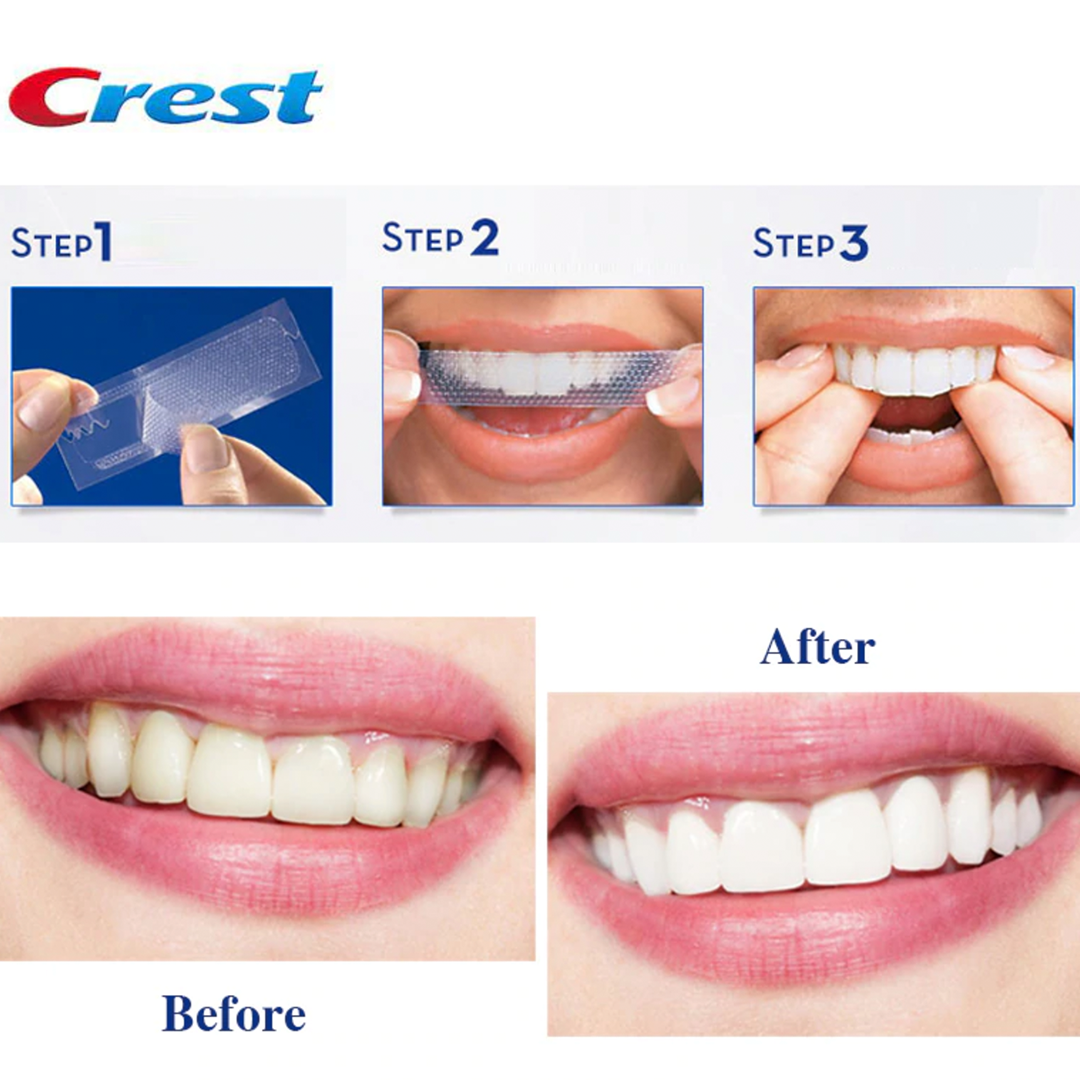 Crest 3d Whitestrips Glamorous White Teeth Whiteners By Crest